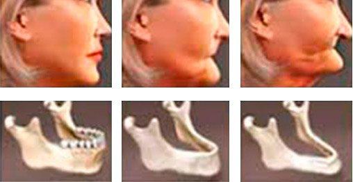implantología estratégica proceso de reabsoción ósea