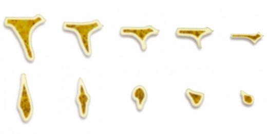 implantología estratégica proceso de reabsorción ósea maxilar superior